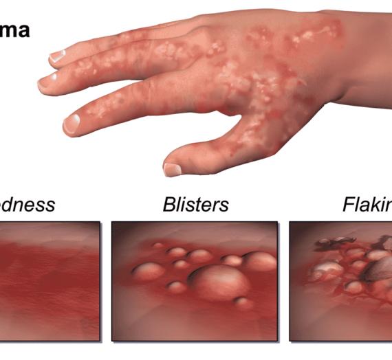 Housewife eczema